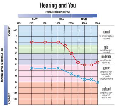 Audina - Hearing Loss
